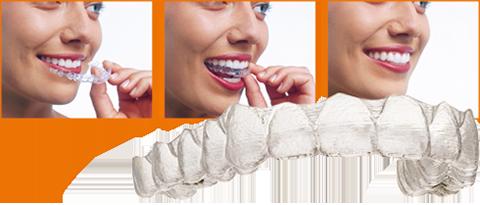 Die klare Alternative zur herkömmlichen Zahnspange
